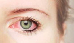 Cиндром сухого глаза и покраснение